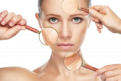 5 Cuidados para quem tem psoríase no rosto